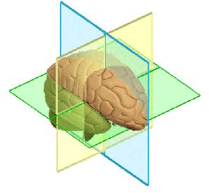 Life-Kinetik-Gehirn